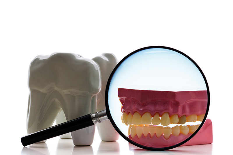 Root Canal in Mamaroneck