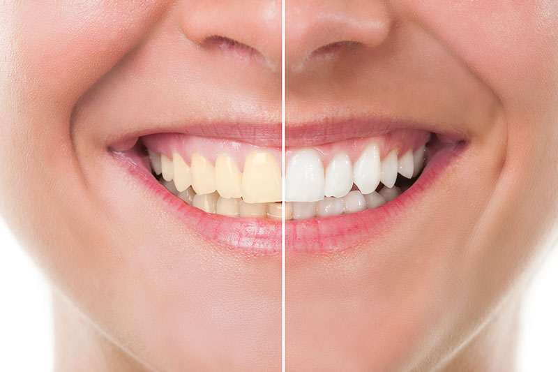 Teeth Whitening in Mamaroneck